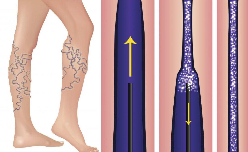 skleroterapiya metodu, склеротерапия