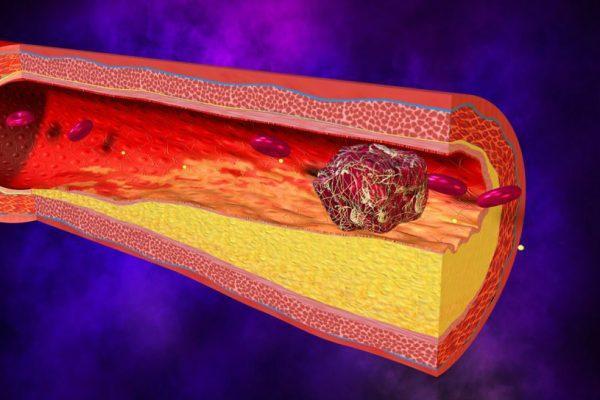 Tromboflebit Nedir Mualicesi