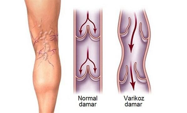 varikoz damarlar